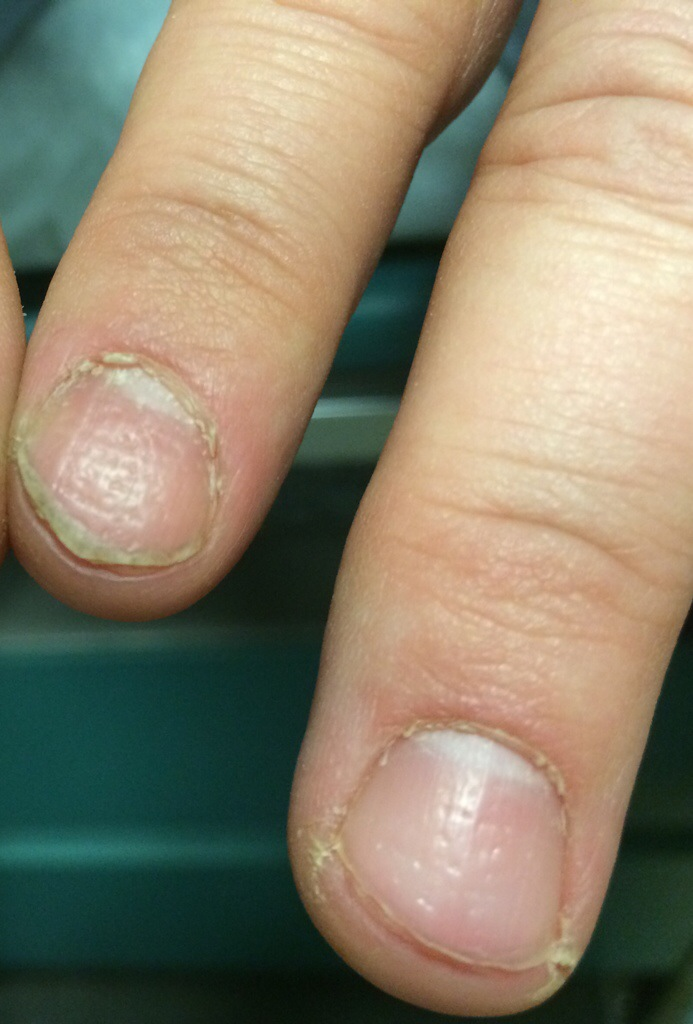 Longitudinal melanonychia   Hudan va Shefa