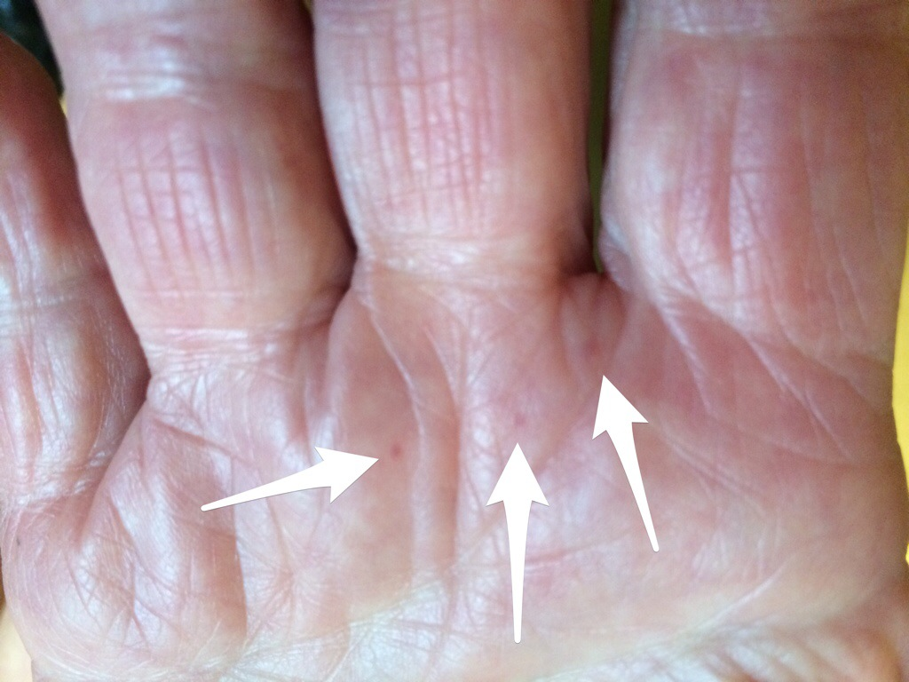 trigger finger steroid injection recovery